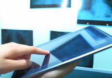 PS tablet and X-ray view box Royalty Free Stock Photo