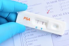 PSA positive test result. By using rapid test cassette royalty free stock image