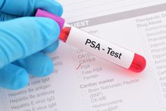 PSA test. Blood sample for PSA prostate specific antigen test stock image
