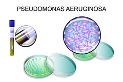 Pseudomonas aeruginosa. bacterial inoculation Stock Photos
