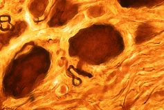 Pseudounipolar neuron. Dorsal root glanglion. Pseudounipolar neuron of a dorsal root ganglion stained with a silver technique. The axon leaves the cell body and Royalty Free Stock Photos