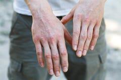 A psoríase vulgar no equipa as mãos com chapa, prurido e remendos na pele Doença genética autoimune Feche acima da vista Horisont fotografia de stock royalty free