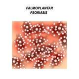 Psoriasi di Palmoplantic Eczema, psoriasi della malattia della pelle della dermatite Infographics Illustrazione di vettore sull'i illustrazione vettoriale
