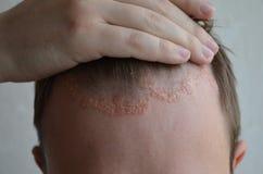 Psoriasins på hudnärbilden, skalperar, foto av dermatit och eksem, hudproblem, dermatologi royaltyfri bild