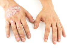 Psoriasins som är vulgaris på, mans händer med platta, överilat och lappar som isoleras på vit bakgrund Autoimmune genetisk sjukd arkivbild