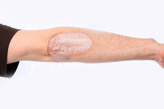 Psoriasis Royalty Free Stock Photos