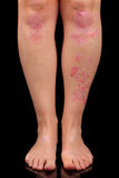 Psoriasis Stock Images