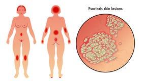 psoriasis illustrazione vettoriale