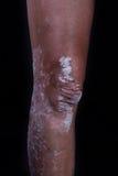 psoriasis Fotografia Stock Libera da Diritti