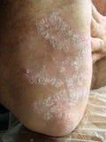 psoriasis Fotos de Stock Royalty Free