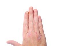 Psoriasis auf den Händen und den Fingernägeln Lizenzfreies Stockfoto