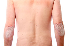 Psoriasis on both elbows Royalty Free Stock Photo