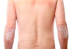 Psoriasis on both elbows. Pronounced Psoriasis on both elbows with white background Royalty Free Stock Photo