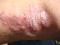 Psoriasis Royalty Free Stock Photography