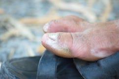 Psoriasis, Dermatitis. Foot Callosity Stock Photography