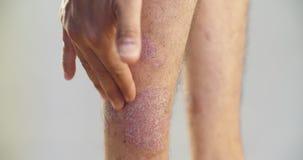 Psoriasis die Knie auf grauem Hintergrund 4K stock footage