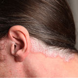 Psoriasis in the ear and neck. Nahaufnahme-Severe psoriasis - psoriasis in the ear and neck - close-up Royalty Free Stock Photo