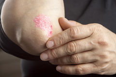 Psoriasis on elbow Royalty Free Stock Images