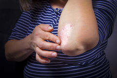 Psoriasis on elbow. Psoriasis on lady`s elbow on dark background. Close up Royalty Free Stock Image