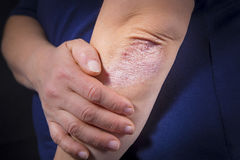 Psoriasis on elbow. Psoriasis on lady`s elbow on dark background. Close up Royalty Free Stock Photography