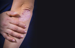 Psoriasis on elbow. Psoriasis on lady`s elbow on dark background. Close up Royalty Free Stock Photo