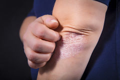 Psoriasis on elbow. Psoriasis on lady`s elbow on dark background. Close up Royalty Free Stock Photos