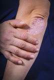 Psoriasis on elbow. Psoriasis on lady`s elbow on dark background. Close up Royalty Free Stock Images