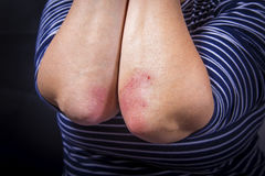 Psoriasis on elbow. Psoriasis on lady`s elbow on dark background. Close up Stock Photography