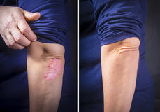 Psoriasis on elbow before and after. Psoriasis on lady`s elbow before and after treatment. Close up Royalty Free Stock Photography