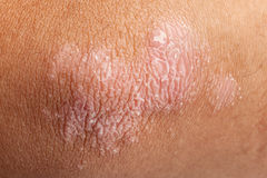 Psoriasis on elbow skin Royalty Free Stock Photo