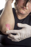 Psoriasis on elbow Royalty Free Stock Photography