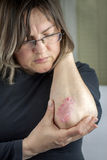 Psoriasis on elbow Stock Photography