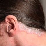 Psoriasis en el oído y el cuello Foto de archivo libre de regalías