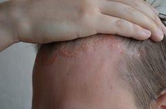 Psoriasis en el primer, el cuero cabelludo, las fotos del dermatitis y el eczema de la piel, problemas de piel, dermatología imagen de archivo