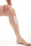 Psoriasis en la pierna Imágenes de archivo libres de regalías