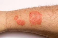 psoriasis Eruzioni di Alergic sulla fine della pelle su il concetto della t Fotografia Stock