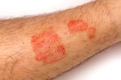 psoriasis Eruzioni di Alergic sulla fine della pelle su il concetto della t Immagini Stock