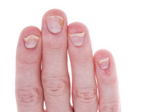 Psoriasis on Fingernails Isolated White Background Stock Images