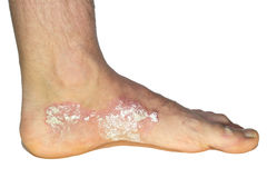 Psoriasis on the foot isolated stock images
