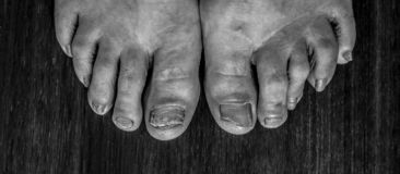 Psoriasis in the foot. In a very serious condition royalty free stock photo