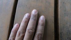 Psoriasis gemein, pilzartig, Ekzem auf Finger Hautausschlag, dermatologisch stockfotografie