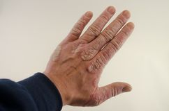 Exacerbation of psoriasis in the hands. Psoriasis on the hand  on white background Stock Photo