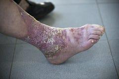 Psoriasis im Fuß lizenzfreie stockfotografie