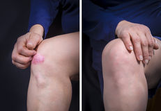 Psoriasis on ladys knee before and after. Psoriasis on woman knee before and after treatment. Close up Stock Images