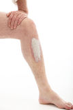 Psoriasis on leg Royalty Free Stock Images