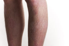 Psoriasis on legs Stock Images