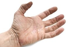 Psoriasis, maladie de la peau Photographie stock