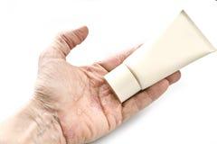 Psoriasis, maladie de la peau Images stock