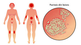 Psoriasis. Medical illustration of the effects of psoriasis and parts of the body most affected Stock Images