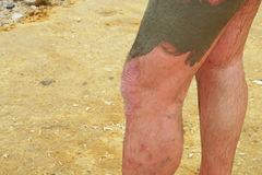 Psoriasis on the men's feet. Treatment with mud stock photo